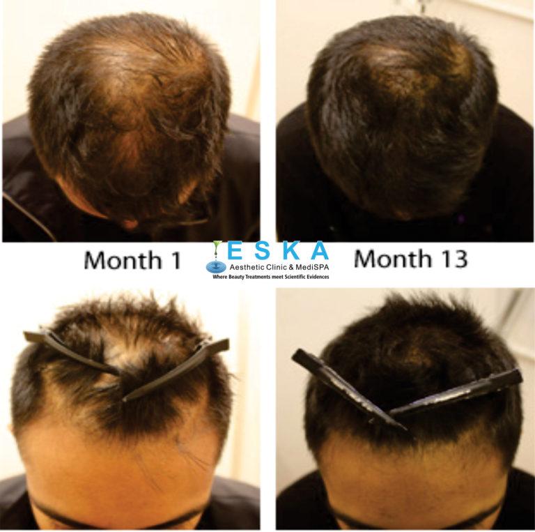 eska group clinic C7231-GrowingHair