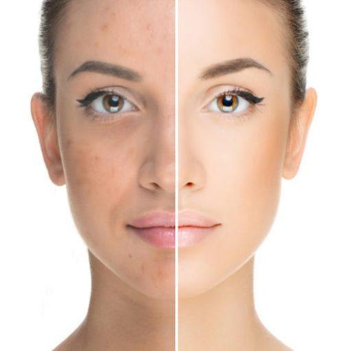 eska group batam eska wellness spa massage & salon winkles-and-pigmentation