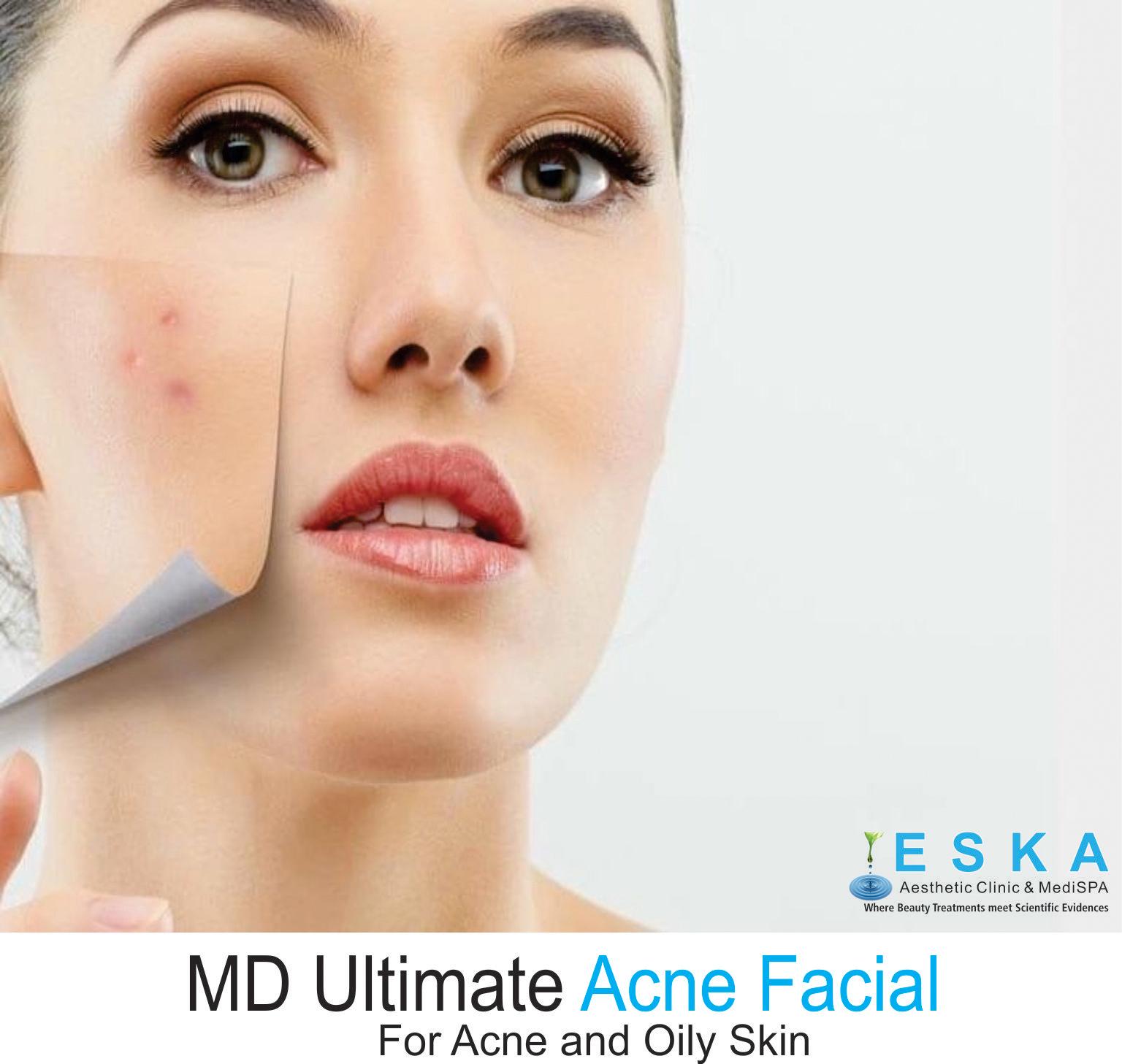 Acne Facial Skin - Porn Pics  Moveis-2804