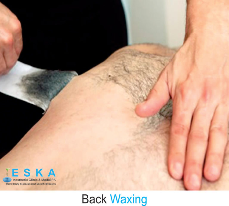 eska group clinic C329-BackWaxing