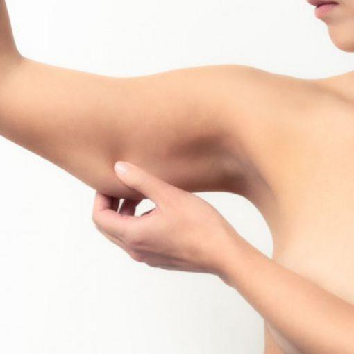 eska group batam eska aesthetic clinic & medispa Skin tightening-1-arm-slimming