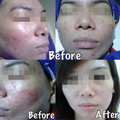 eska group batam eska aesthetic clinic & medispa 1-skin-resurfacing-refining-pores