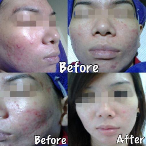 eska group batam eska aesthetic clinic & medispa 1-skin-resurfacing-refining-pores