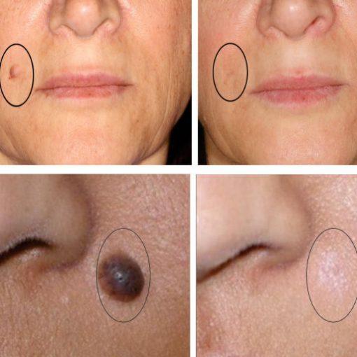 eska group batam eska aesthetic clinic & medispa 2-laser-nevus-removal