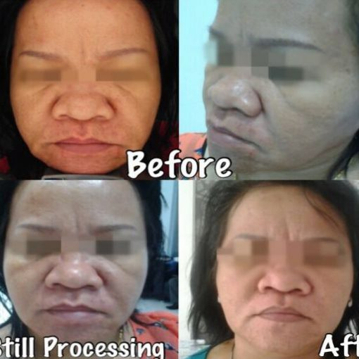 eska group batam eska aesthetic clinic & medispa 3-skin-resurfacing-tightening
