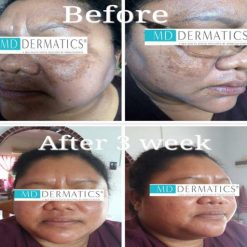 eska group batam eska aesthetic clinic & medispa 5-skin-resurfacing-pigmentation