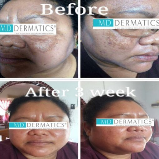 eska group batam eska aesthetic clinic & medispa 5-skin-resurfacing-pigmentation