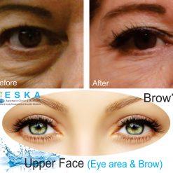 eska group clinic C2171-UpperFaceEyeAreaBrow