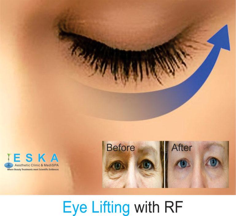 eska group clinic C2153-EyeLiftingwithRF