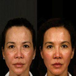 eska group batam eska aesthetic clinic & medispa Full Face (Eye area, Cheeks & Chin)