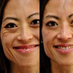 eska group batam eska aesthetic clinic & medispa Full Face & Neck (Eye Area, Brow, Cheeks, Jaw & Neck)