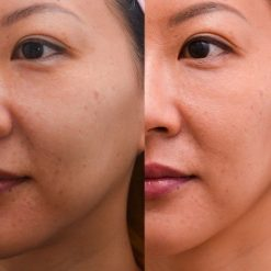 eska group batam eska aesthetic clinic & medispa Lower Face (Cheeks & Jaw)