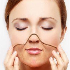 eska group batam eska aesthetic clinic & medispa advance-machine-with-ptf-bye2-wrinkles