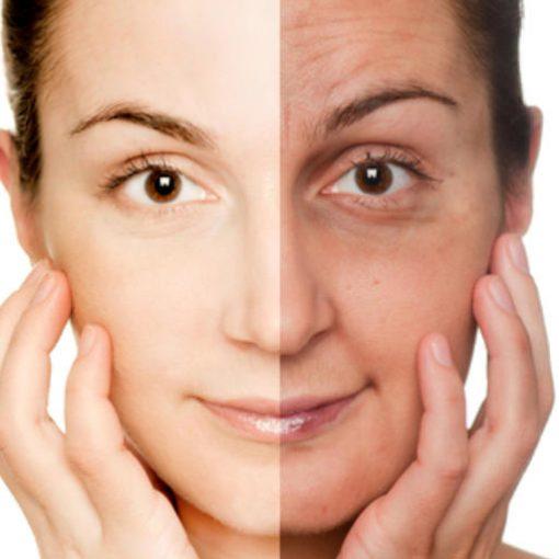 eska group batam eska aesthetic clinic & medispa advance-machine-with-ptf-face-rejuvenation