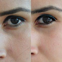 eska group batam eska aesthetic clinic & medispa advance-machine-with-ptf-refining-pores