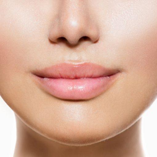 eska group batam eska aesthetic clinic & medispa hair removal-2-upperlips