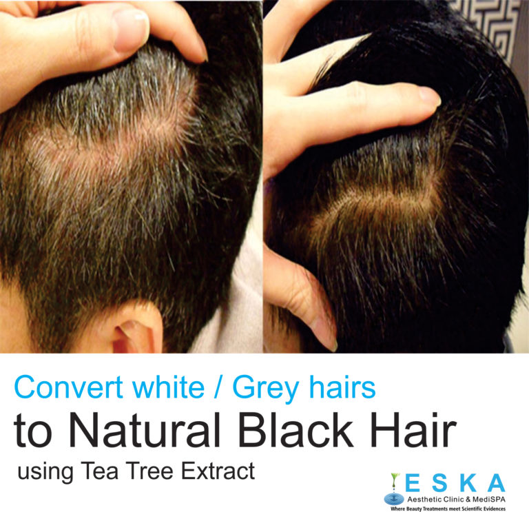 eska group clinic C7232-WhiteorGreyHair