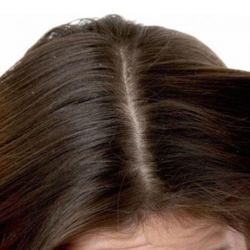eska group batam eska wellness spa massage & salon 3-dandruf-scalp