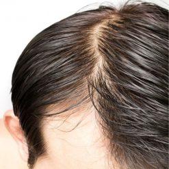 eska group batam eska wellness spa massage & salon 4-oily-scalp