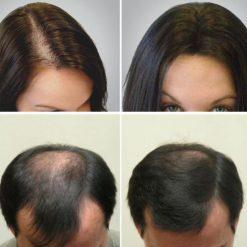 eska group batam eska wellness spa massage & salon 6-growing-hair