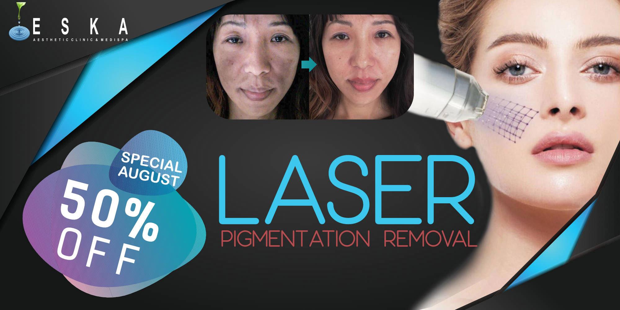 eska group batam eska aesthetic clinic & medispa promo-180801-laser-pigmentation-removal-special-aug-50-%-discount-promo